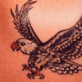 content_tattoo01_vorher