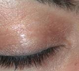 content_vitiligo01_nachher