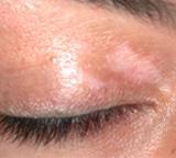 content_vitiligo01_vorher